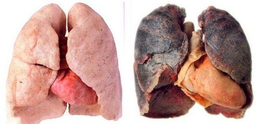 سرطانی که در روزهای آلوده از رگ گردن به پایتخت نشینان نزدیکتر است