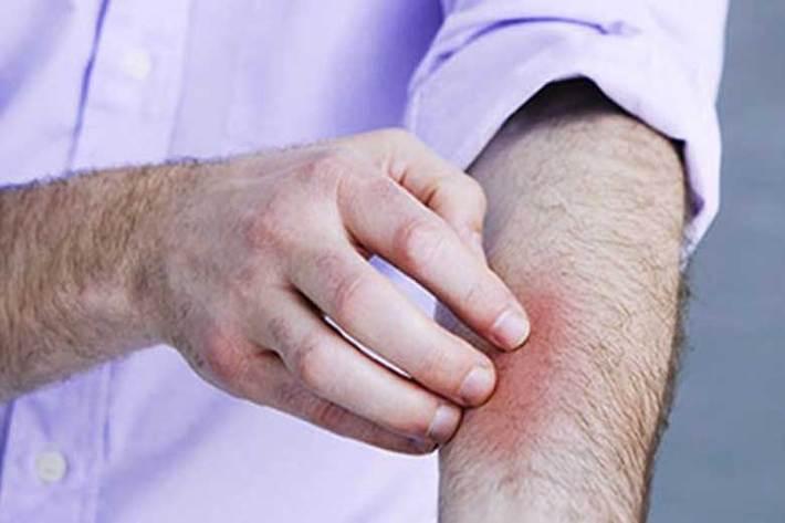 احتمال انتقال کرونا از طریق پوست آسیب دیده